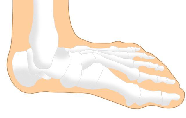 右足 土踏まず 痛い